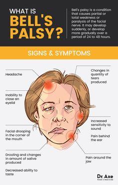 Partial facial paralysis causes pics 118