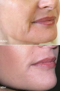 Ways to Remove Wrinkles Around Mouth
