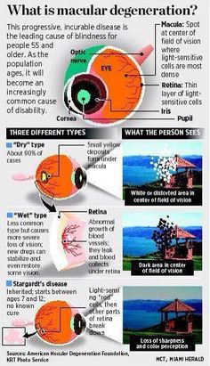devastating facts about Macular Degeneration can be hard to understand and explain. This infographic breaks down the disease, the different types and how people are affected by it so you can understand why overall ocular health is important! Diabetic Eye Disease, Eye Facts, Healthy Eyes, Nursing Tips, Nursing Notes, Eyes Problems, Medical Information, Anatomy And Physiology, Leiden