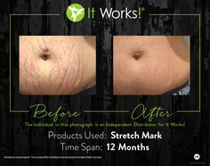 Holy moly y'all!! This stretch mark cream is AMAZE BALLS!!! I have 4 spots left for the month of February for you to try this now! First come first serve!
