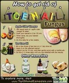 DIY ways to rid yourself of nail fungus.