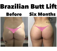 Bbl Surgery, Surgery Recovery, Body Lift Surgery, Skinny To Fit, Fat Transfer, Mommy Makeover, Girl Tips, Liposuction, Transformation Body