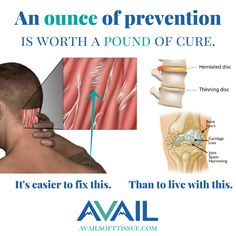 Fixing adhesion can slow degeneration & prevent injuries.  When treated by an expert, adhesion is the most fixable problem in the body.  Show your body some gratitude.