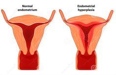 Obat Penebalan Dinding Rahim Tanpa Harus Kuret Atasi penebalan dinding rahim…