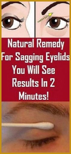 Natural Remedy For Sagging Eyelids You Will See Results In 2 Minutes! Natural Remedy For Sagging Eyelids You Will See Results In 2 Minutes! Holistic Remedies, Holistic Healing, Natural Healing, Health Remedies, Natural Remedies, Health Guru, Health And Nutrition, Health Fitness, Fitness Tips