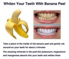 DIY teeth whitening - worth a try since I eat bananas every morning! :)