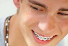 Chỉnh nha niềng răng cho người trưởng thành hiệu quả được bác sĩ thực hiện bằng cách lập kế hoạch điều trị cụ thể phù hợp với thời gian, nhu cầu thẩm mỹ của từng người mà vẫn đạt hiệu quả cao...