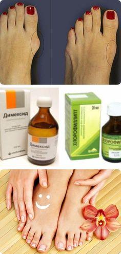 Как самостоятельно избавиться от косточки на ноге Health And Beauty, Health And Wellness, Health Tips, Health Care, Health Fitness, Herbal Remedies, Hand Care, Eye Make Up, Exercises