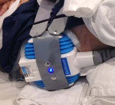 Check out this close up of the CoolSculpting procedure at work! (Shared by @zcosmetichealth) Rules of Engagement: http://on.fb.me/1Etu0Hm