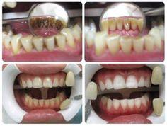 #cavitiesnaturaltreatment