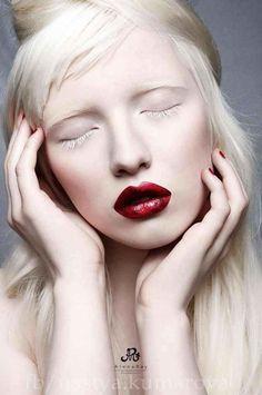 White - Red