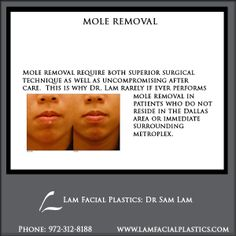 Mole removal require both superior surgical technique as well as uncompromising after care. All Mole removal procedures are performed in Dallas, Texas, by Dr Lam personally. Facial Procedure, Mole Removal, Plastic Surgery Procedures, Surgery Center, Dallas Texas, How To Remove