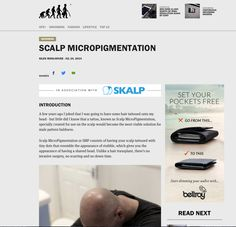 Ape to Gentleman- Full article here- http://www.apetogentleman.com/2014/07/24/scalp-micropigmentation/  http://birdsontheblog.co.uk/skalp-revolutionary-hair-loss-treatment/