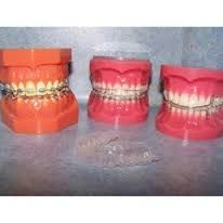 Image result for Embraceorthodontists