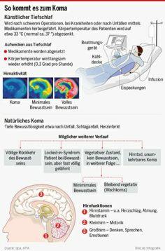 Infografik: So kommt es zum Koma