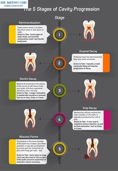 The 5 Stages Of Cavity Progression Tooth decay doesn't happen all at once. It comes in stages, with minor cavities eventually developing into severe tooth decay and worse. View in detail Teeth Health, Dental Health, Oral Health, Health Care, Dental Assistant Study, Dental Hygiene, Dental Terminology, Dental Pictures, Teeth Pictures