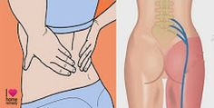 Sciatica pain is usually treated with short-term effect medications, but we're going to present you a natural remedy for treat your sciatic or back pain...