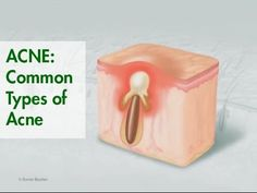 ACNE: Common Types of Acne