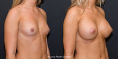 If you want to know about breast augmentation just click this photo for more information  ...