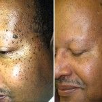 Most moles aren't dangerous, especially to our health. Almost everyone finds them disgusting, so that's the initial problem with moles. Moles represent black, brown, or flesh-colored spots or marks on the skin that are created because of the collection of...
