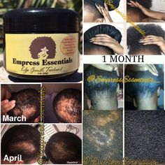 Hair Loss Treatment Hair growth Cream 1 Month Supply Balding Alopecia Thin Edges Bald Spots For Men or Women Black Castor Oil Haarausfallbehandlung Haarwuchscreme 1 Monat Versorgung Glatze New Hair Growth, Healthy Hair Growth, Natural Hair Growth, Natural Hair Styles, Black Hair Growth, Nail Growth, Grow Long Hair, Grow Hair, Edge Growth