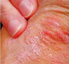 signs of eczema in adults