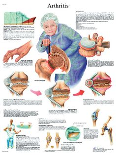 This anatomical chart is full of information about arthritis. The chart tells what arthritis is, effects, treatments, and arthritis therapy. Occupational Therapy, Physical Therapy, Health Chart, Nursing Tips, Medical Information, Rheumatoid Arthritis, Anatomy And Physiology, Just In Case, Nurse Life