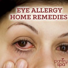 Eye Allergies: Natural Remedies For Itchy, Red & Watery Eyes