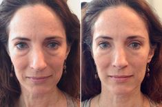 This simple face massage makes you look younger in 90 seconds - Healthy Skin 🏻 Anti Aging Facial, Anti Aging Skin Care, Natural Skin Care, Younger Skin, Look Younger, Yoga Facial, Face Facial, Face Skin, Face Exercises
