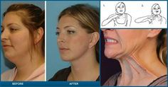 Got A Double Chin? This Simple Tips Will Help You Get Rid Of It FAST! | Diply