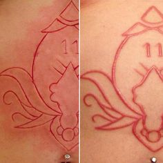 #Scarification by #LukasZpira , first day VS one month healed ❤️. #nofilter