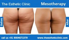 Mesotherapy for Skin and Face Treatment Before After Photos in Mumbai, India For more information visit http://www.theestheticclinic.com/skin/dermatology/mesotherapy.html