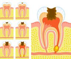 Cuando te duele ya es tarde: ¿Por qué te duele un #diente con #caries? La #prevención es mucho más efectiva (y barata!)