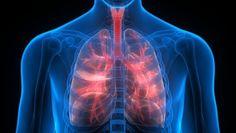 La enfermedad pulmonar obstructiva crónica (EPOC) es una de las más comunes en todo el mundo. Se estima que afecta a cerca de un 5% de la población mundial