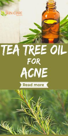Find the best tea tree oil brands for acne and more. Jump to theskincarereviews.com #teatreeoil #bestteatree #teatreebrand #acne Best Acne Products, Best Skincare Products, Skin Products, Best Tea Tree Oil, Tea Tree Oil For Acne, Blackhead Remedies, Acne Remedies, Australian Tea Tree Oil, Organic Tea Tree Oil