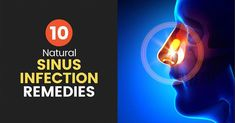 Sinus Infection: Signs and Symptoms + 10 Natural Remedies #NaturalRemediesMigraine Sinus Infection Remedies, Chest Congestion Remedies, Congestion Relief, Anxiety Remedies, Sleep Remedies, Saline Nasal Spray, Allergy Remedies, Nasal Passages, Natural Remedies