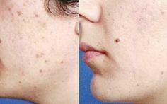 Vrei un ten catifelat și strălucitor? La Skin Clinic îl poți obține în 15 minute!