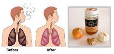 Anuncios Actualmente has de dejado de fumas o eres aun un fumador activo, usted probablemente sabe que los pulmones se llenan de toxinas y necesitan ser limpiados de una forma natural y es realmente sencillo de hacerlo. Al ser conscientes de que somos fumadores sabemos que nuestros pulmones tienen células muertas y debemos de desechar …