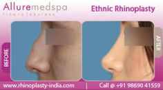 Ethnic rhinoplasty is a surgical procedure which alters the shape and structure of the nose to enhance the beauty without changing or losing their ethnicity.