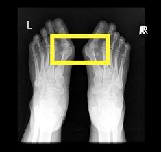 Jak uzdravit vbočený palec, klenby a problémy chodidel [Barefoot speciál 3] Barefoot