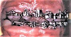 fully banded braces orthodontic braces full band braces seventies old school braces retro braces Braces Problems, Braces Girls, Brace Face, Orthodontics, Band, 1970s, Retro, School, Dental Braces
