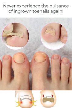 Diy Pedicure, Pedicure At Home, Ingrown Nail, Prevent Ingrown Toe Nails, Ingrown Toenail Treatment, Ugly Toenails, Nagel Hacks, Nail Growth, Feet Care