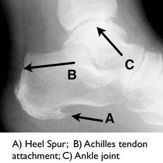 Plantar Fasciitis and Heel Spurs