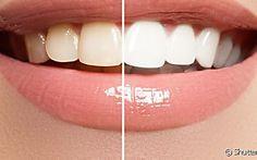 3 hábitos que podem estar deixando seus dentes amarelados