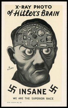 X-Ray of Hitler's brain (1942)