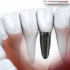 5 consejos para mejorar la higiene de tus Implantes Dentales: - Sistema de irrigación - Escobillas interdentales - Hilo dental específico para implantes - Cepillar los dientes con crema dental antibacteriana - Visitas regulares al médico dentista para limpieza (3-6 meses) según los casos
