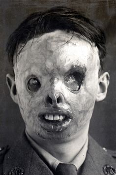 Severe effects of mustard gas in WWI