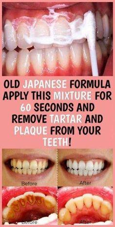 Teeth Health, Oral Health, Health Care, Healthy Teeth, Dental Health, Health Heal, Gum Health, Healthy Life, Healthy Beauty