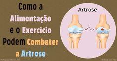 A artrose é uma forma degenerativa da doença articular artrítica. Se você sofre dessa doença, os exercícios serão cruciais para o seu bem estar.