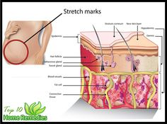 Prev post1 of 3Next Stretch marks are visible lines on the skin surface, with an off-color hue. Stretch marks are mainly found in the abdominal wall, but can also occur over the thighs, upper arms, buttocks and breasts. Sometimes stretch marks can cover large areas of the body. While pregnancy is the main cause behind
